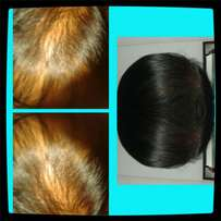 Miracle hair growth treatment forsale in bfn