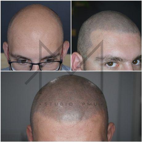 Mikropigmentacja Skóry Głowy Zagęszczanie Włosów Przeszczep