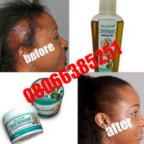 No To Bald Spot With Our Product