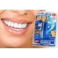 White Light Advanced Laser Teeth Whitening