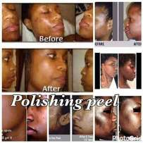 Polishing Peel-Microdermabrasion In a Bottle