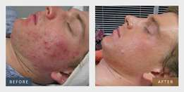 Would you like to improve your skin condition?