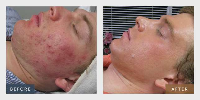 Would you like to improve your skin condition? Westridge - image 1