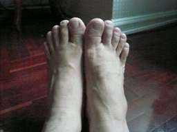 Specialist foot problems