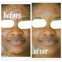 Permanent Cure For Stubborn Pimples, Face Spots And Body Spots