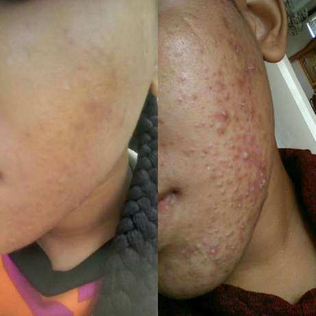 Would you like to improve your skin condition? Westridge - image 2