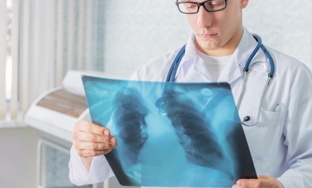 Рентген на дому мошенничество