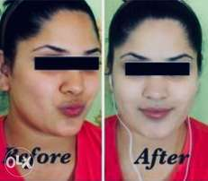 Extreme Whitening products