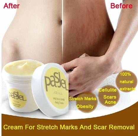 Original Pasjel Precious Stretch Marks Removal Cream Kaduna North - image 2