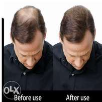 THE TOPPIK HAIR LOSS CONCEALER - Get Fuller and Thicker Hair in 5 min