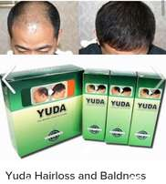 Yuda HairGrowth Spray For Baldness and Hairloss