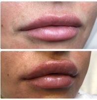 Акция на увеличение губ