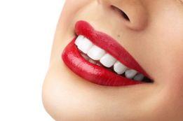 Профессиональное Отбеливание Зубов: АКЦИЯ. 2000грн вместо 3500грн.