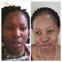 Image of Acne and pimple treatment and removal creams