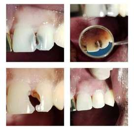 Problems with your teeth ?