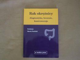 Rak okrężnicy- diagnostyka, leczenie, kontrowersje. Marek Pawlicki