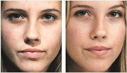 Омолаживающий комплекс процедур для лица, шеи и зоны декольте