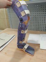 Протези, ортези і ортопедичні устілки
