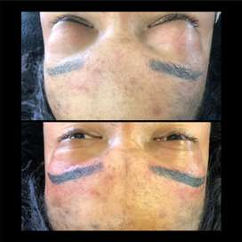 Microblading and permanent , derma planning