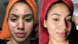 Start your journey to clear skin today!