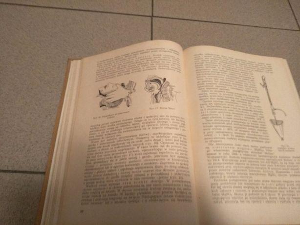 Chirurgia ogólna wydanie II Warszawa 1959r. , Tadeusz Butkiewicz Jarosław - image 6
