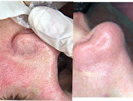 Косметология ультразвуковая чистка лица