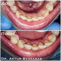 Акция 299 грн. Профессиональная чистка зубов! Стоматолог Харьков!