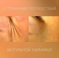 Увеличение губ.Врач-косметолог.
