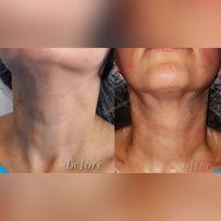 Увеличение губ. Врач-косметолог. Радиесс