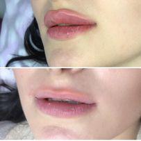 Аугментация. Увеличение губ, контурная пластика.Новая методика -БАНТИК