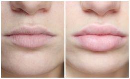 Контурная пластика ,коррекция морщин ,Увеличение губ