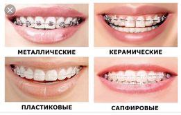Брекети , стоматологія